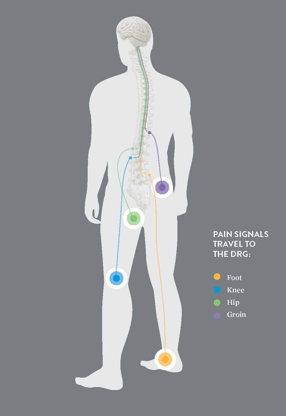 Dorsal Root Ganglion Drg Advanced Paincare Dr Michael Fishell